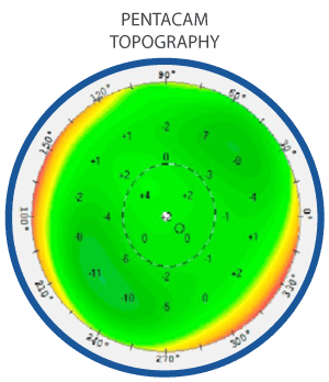 eye-topography-map