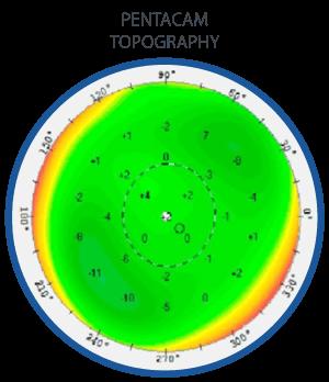 eye-topography-map