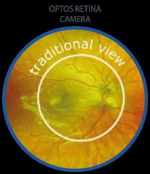optos-retina-camera