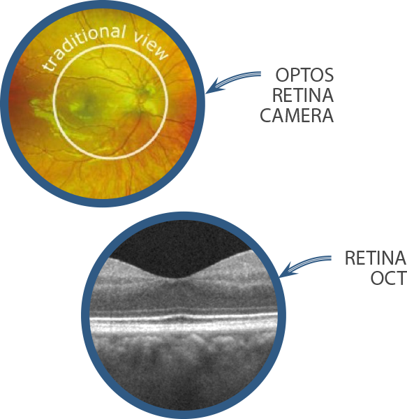 cataract-diagnosis-oct-optos