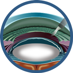 Cataract-Surgery-Steps