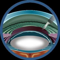 Cataract-Surgery-Steps