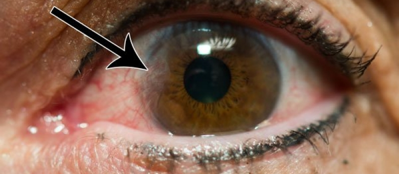Pinguecula-pterygium-eye-surgery