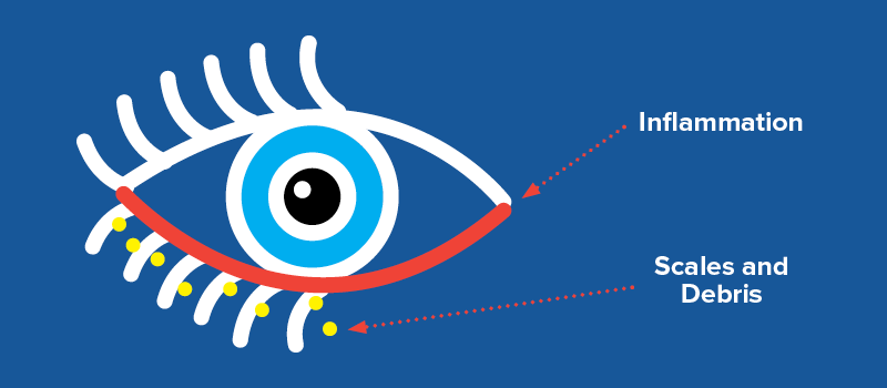 blepharitis-icon