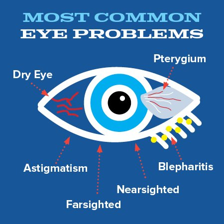eye-exam-conditions-icon