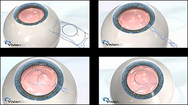 visian-icl-surgery-steps